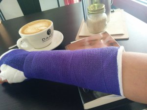 my purple cast